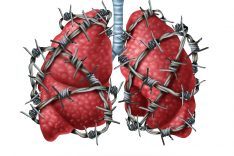 lung cancer earliest symptoms
